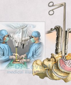 Neurosurgery (NS)